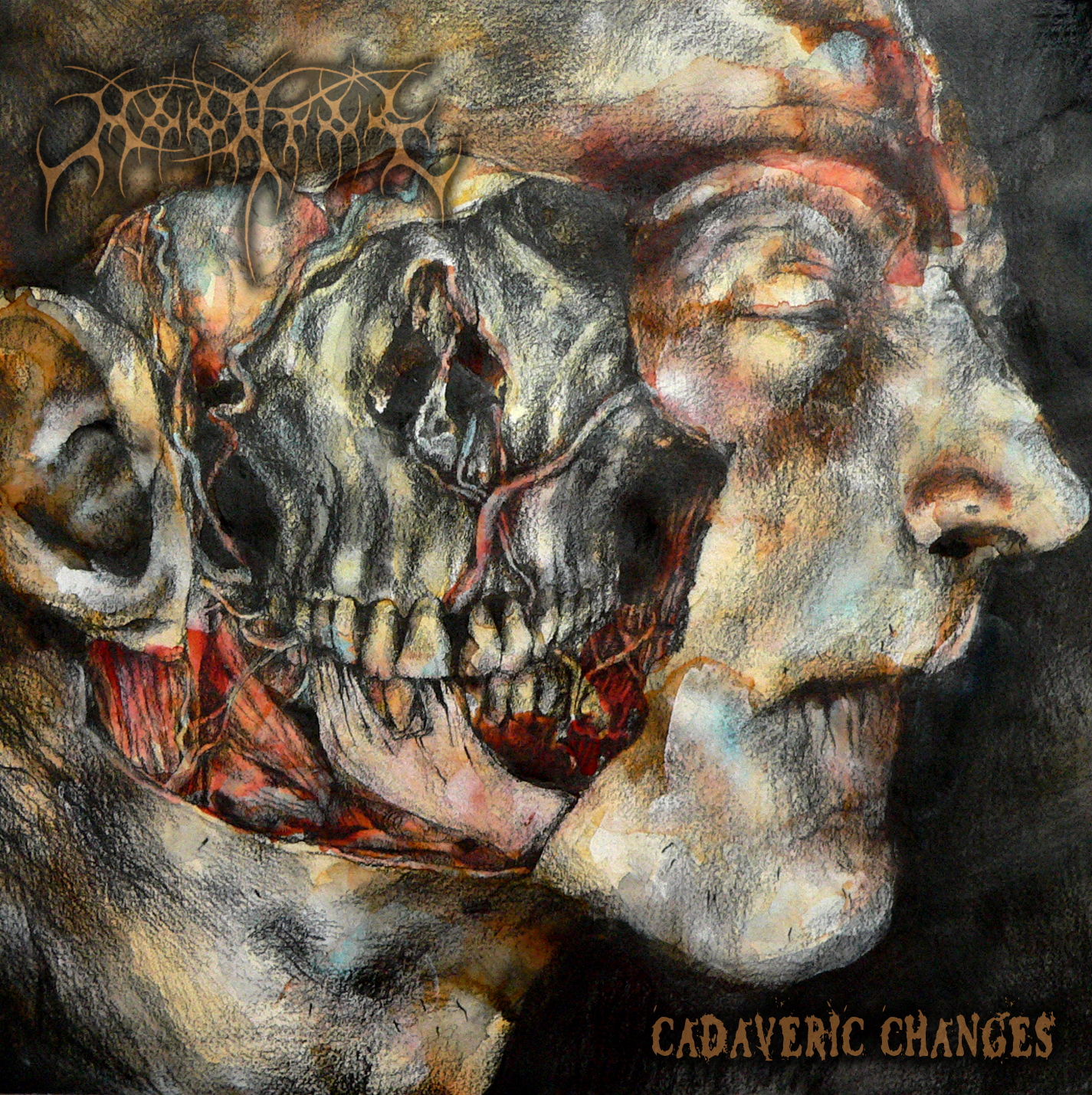MOONFOG Cadaveric Changes